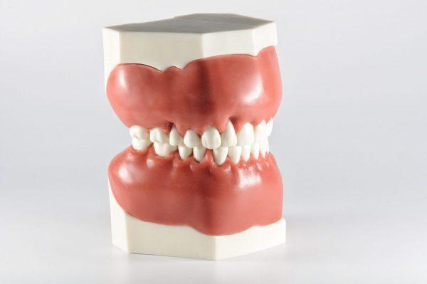 Модель верхней и нижней челюсти для отработки навыков закрытия рецессии