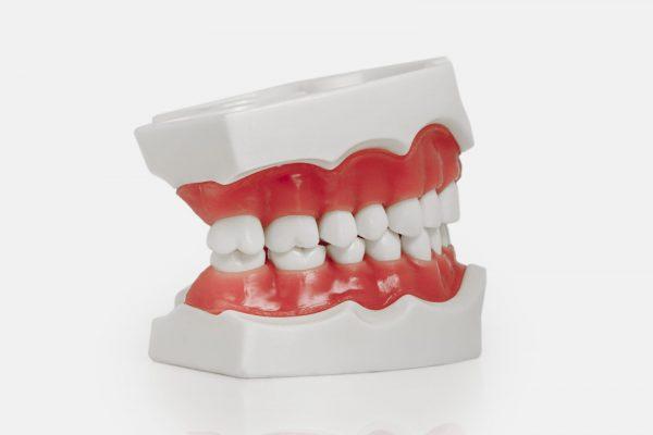 Модель верхней и нижней челюсти с 28 интактными зубами для отработки навыков препарирования зубов