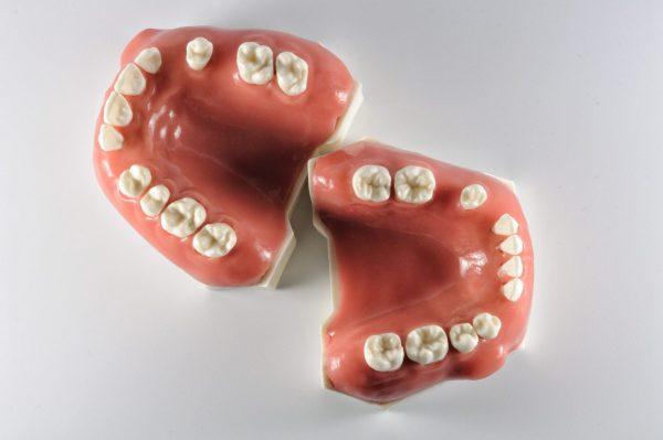 Модель верхней и нижней челюсти для отработки манипуляций в хирургической стоматологии