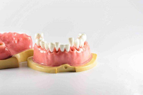 Модель верхней и нижней челюсти с 28 заменяемыми зубами с прозрачными корнями для отработки навыков в эндодонтии