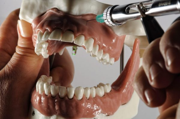 Модель соединенных между собой верхней и нижней челюсти для проведения местной анестезии